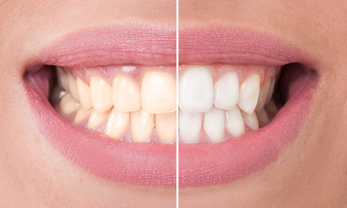 Tooth Whitening Myths: What Really Works?