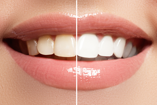Teeth Whitening Post-Op Care: How to Prolong the Whitening Results