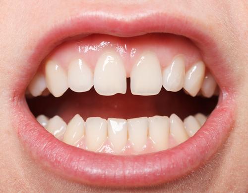 Dental Diastema: Closing the Gap