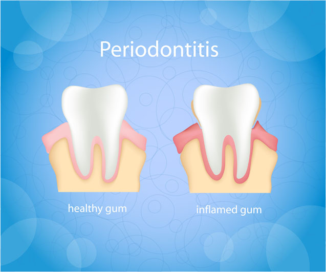 What is the Link between Heart Disease and Periodontitis?