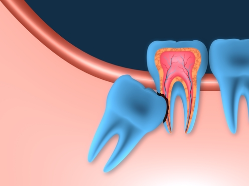 Are People Without Wisdom Teeth Highly Evolved?
