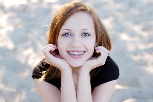 10 Tips to a Clean Smile with Braces