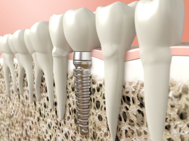 Implants vs. Crowns and Bridges: how to make the right choice.