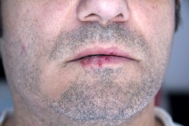 Common Oral Health Issues – Oral Herpes