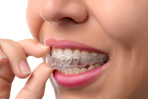 Pros and Cons of Invisalign Treatment